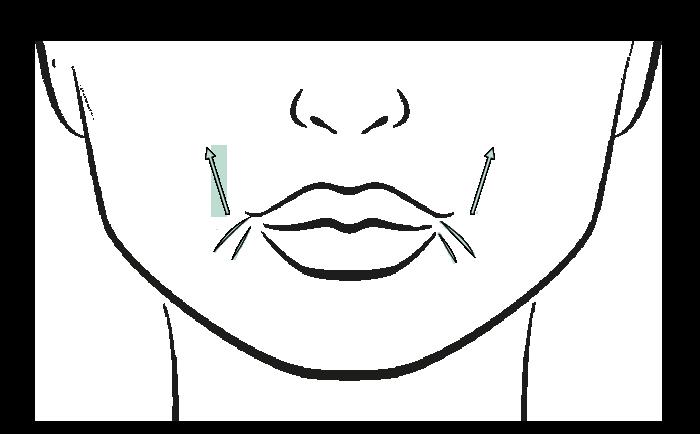Prijs mondhoeken liften met botox